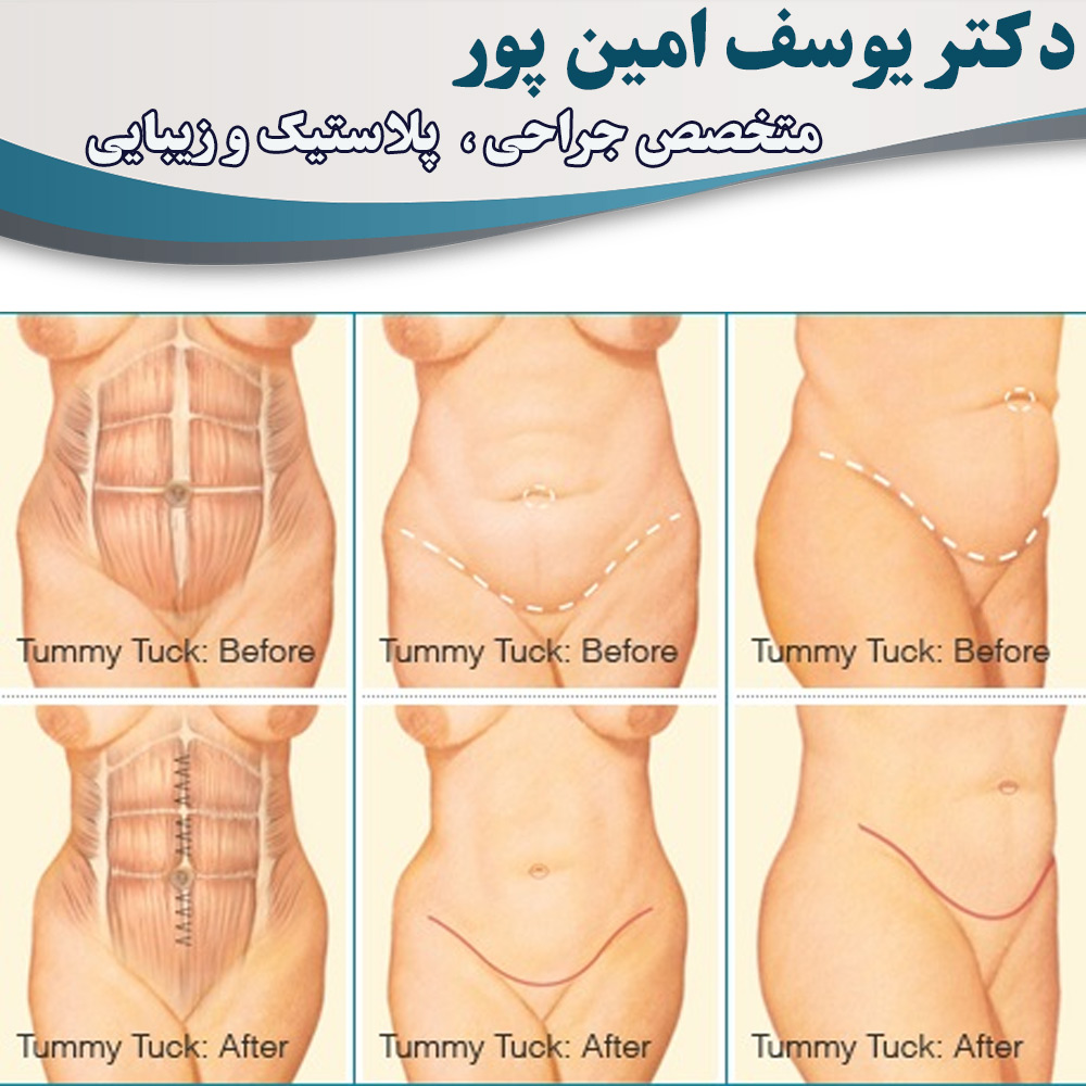 abdominoplasty-in-urmia
