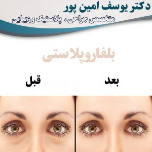 blepharoplasty-in-urmia