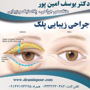 جراحی زیبایی پلک در ارومیه