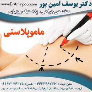 ماموپلاستی(کوچک کردن سینه) | mamoplasty